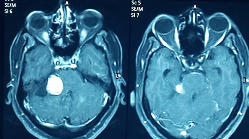 brain tumour Preoprerative Scan