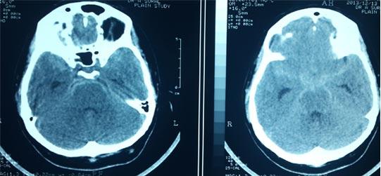 CT images showing Subarachnoid Haemorrhage2