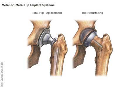 Hip-Replacement-and-Resurfacing