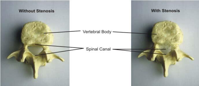 spondylosis et listhesis