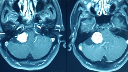 Vestibular Schwannoma case study