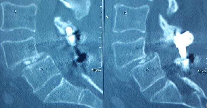 Spine-Revision-Pre-Operative1