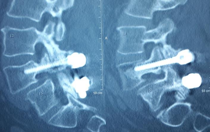 Spine-Revision-Pre-Operative2