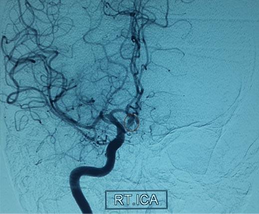 Pre-op Angiogram Scans