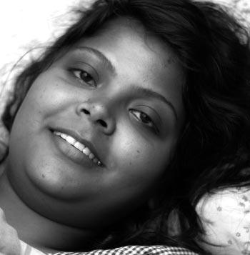 sbs-patient-Moumita-large
