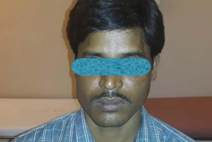Clinical photograph 6 months after surgery demonstrating no visible scarring