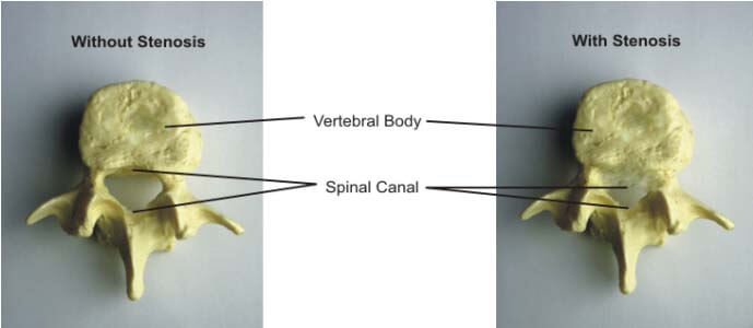 spinal_stenosis_explained