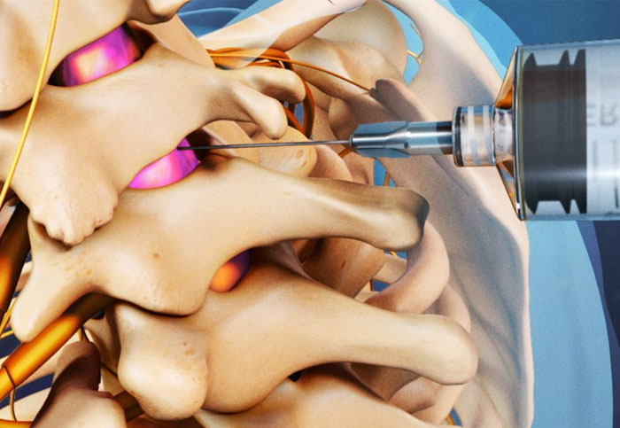 Best Treatments for - Spinal Stenosis