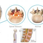 Causes Spinal Stenosis - Sita Bhateja Specialty Hospitals