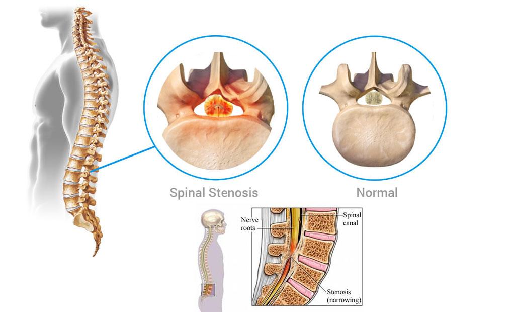 Causes Spinal Stenosis - Sita Bhateja Specialty Hospitals